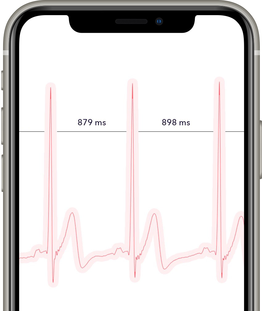 App with HRV